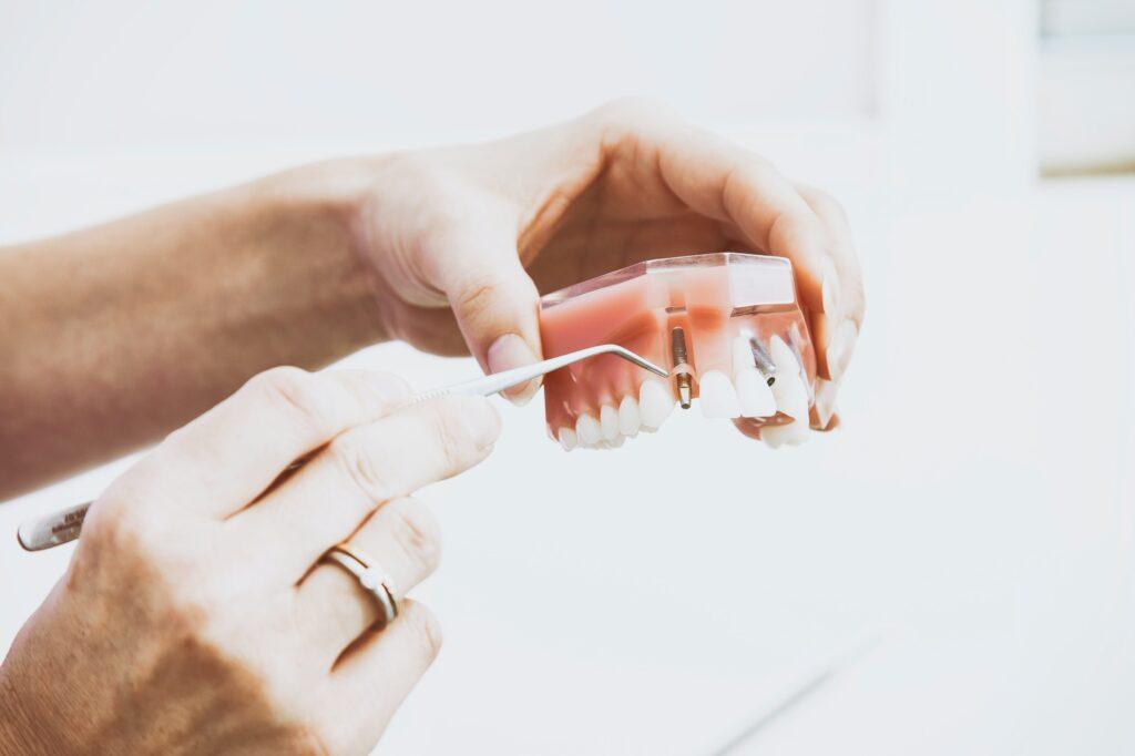 A dental technicians hands holding a set of dentures and a dental tool.